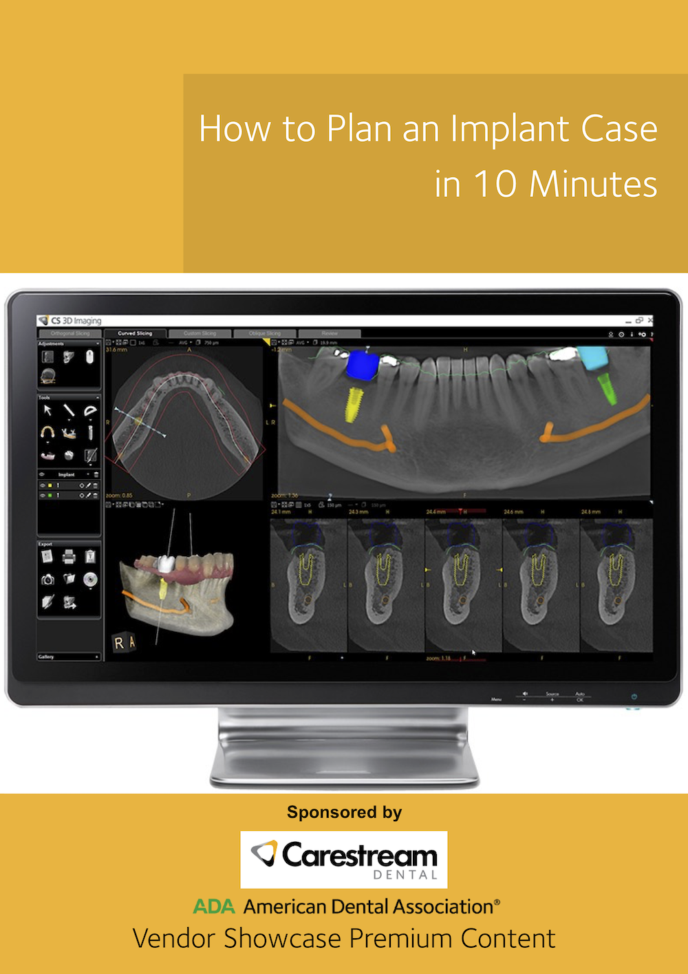 How to Plan an Implant Case in 10 Minutes