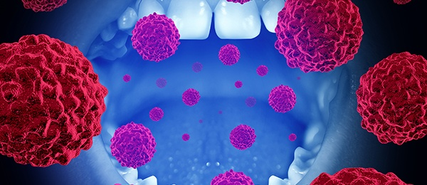 graphic image of a mouth with floating cancer cells